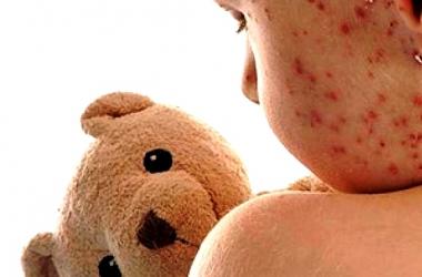 Após 1ª morte por sarampo, em SP, procura por vacina em Friburgo deve aumentar